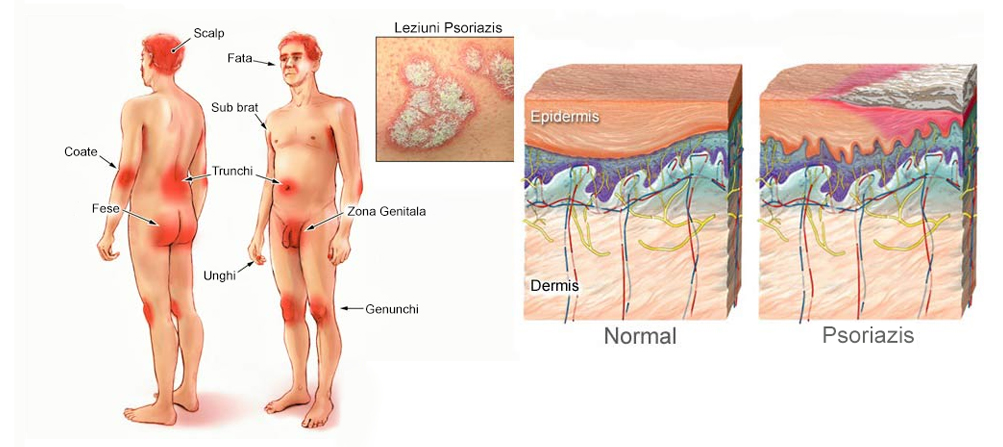 simptome artrita reumatoida cauze colesterol