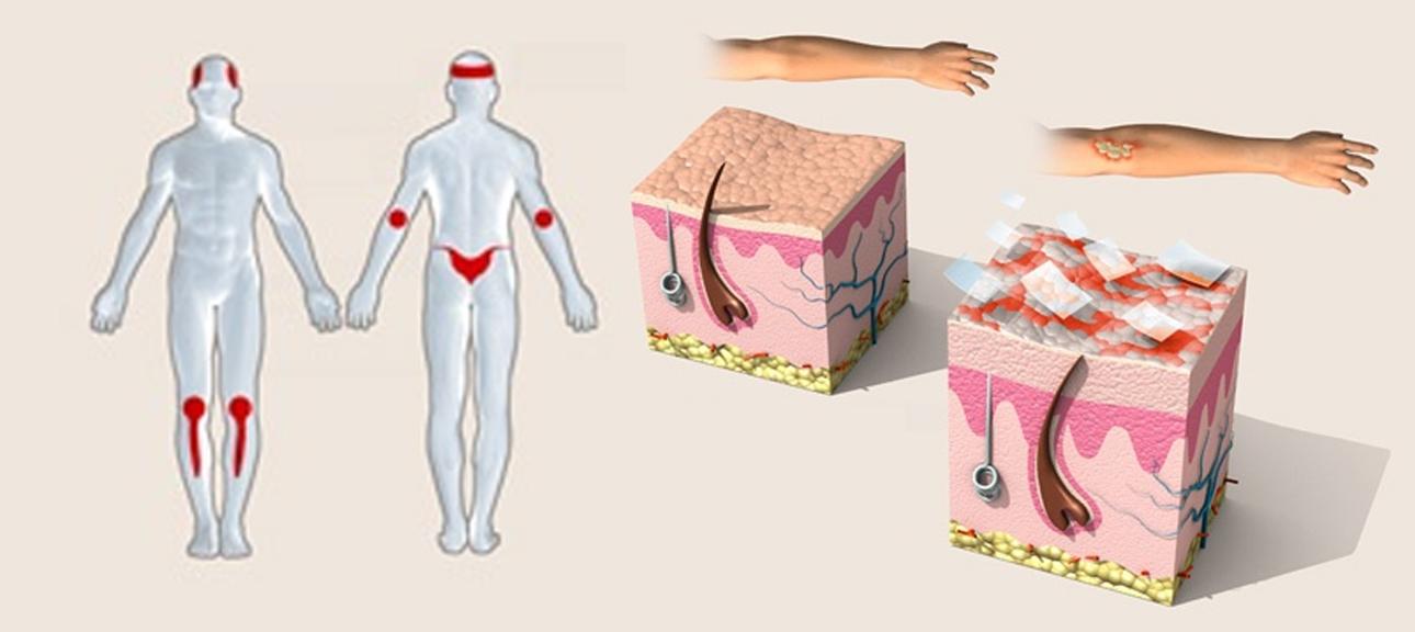 gel de dus pentru dermatita atopica sapun od