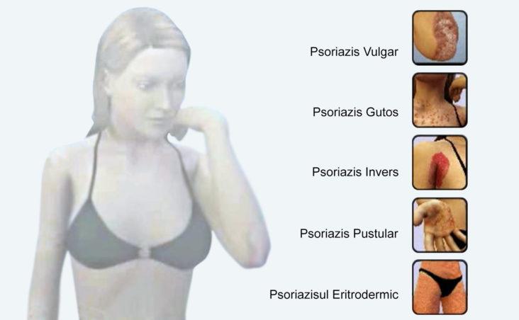 eczema alergica tratament